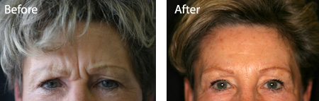 Botox and dermal fillers. BEFORE and AFTER