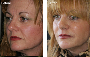 Dermal Fillers at Meon face Petersfield Hampshire - Derma Roller at Meon face Petersfield Hampshire