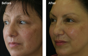 Facial Rejuvenation at Meon face Petersfield Hampshire - Botox at Meon face Petersfield Hampshire