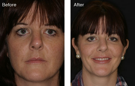Mid-face lift and her lips enhanced. BEFORE and AFTER