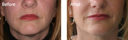 Botox treatment. BEFORE and AFTER