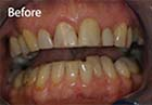 White fillings at Meon Dental Practice Petersfield Hampshire