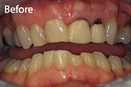 Dental Crowns at Meon Dental Practice Petersfield Hampshire
