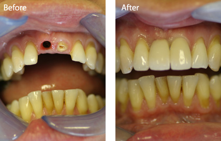 Dental implant. BEFORE and AFTER