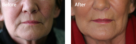 Lower face. BEFORE and AFTER