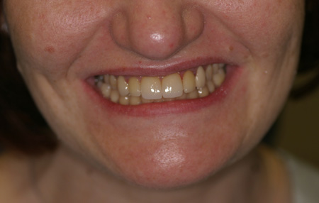 Smile makeover. BEFORE and AFTER