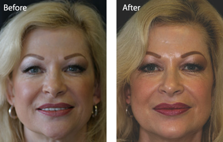 Facial rejuvenation. BEFORE and AFTER